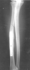 Example of a fracture near surgical plate site. (Photo from bjsportsmed.com)